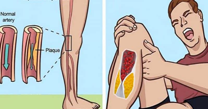 Here's How to Thin Your Blood Naturally and Prevent Deadly Blood Clots