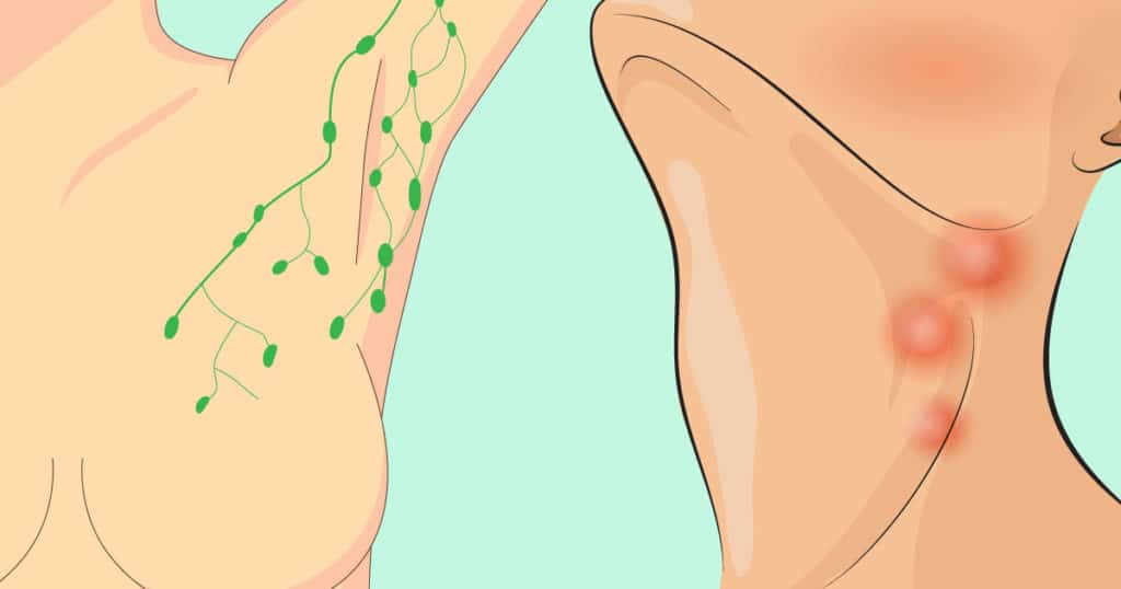 Few Signs There's A Toxic, Congested Lymph In The Body And How To Help Drain It