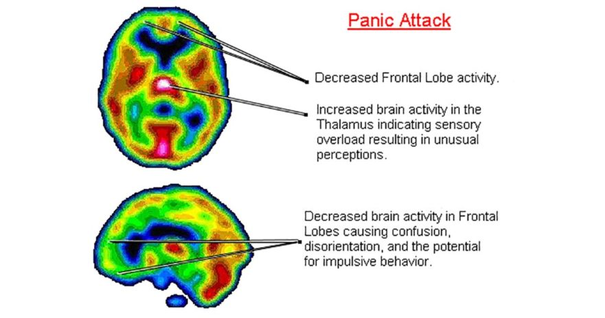 Panic Attacks And Anxiety Linked To Low Vitamin B6 And Iron levels 6