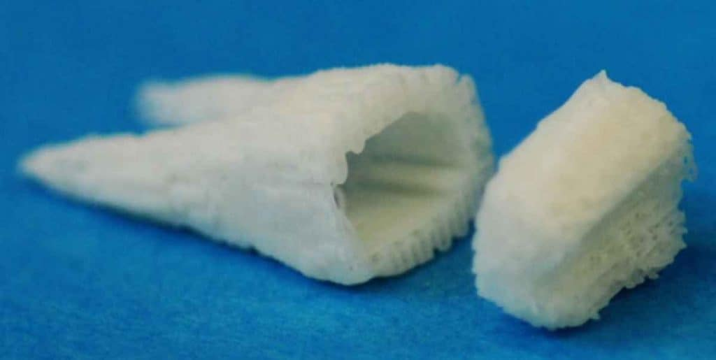 Stem Cell Dental Implants Grow New Teeth In 2 Months!