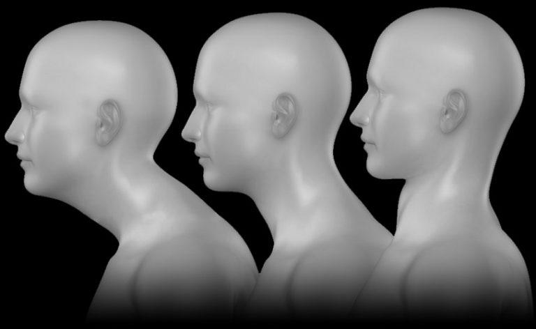 forward-head-posture-fix-review