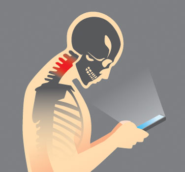 texting causes forward head posture syndrome