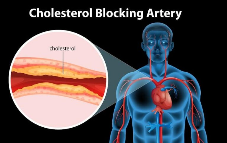 High Cholesterol and Heart Disease Myth or Truth